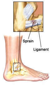 Side View Of Lower Leg Showing And Heel Bones Ligaments Closeup Shows Sprain