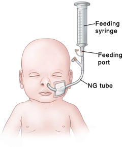 Your Child's Nasogastric Tube: A Comprehensive Guide to Care