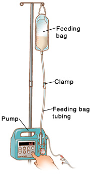 Feeding bag hanging from pole on pump. Feeding bag tubing goes from bag to pump. Clamp is in middle of tubing. Finger is pressing the On button.