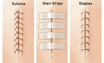 Sutures Differences