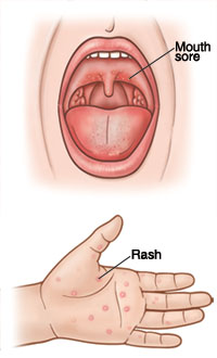 Open mouth showing sore on back of roof of mouth. Closeup of palm of hand showing red rash.