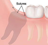 Closeup of gum and molars showing sutures closing gum where wisdom tooth was removed.