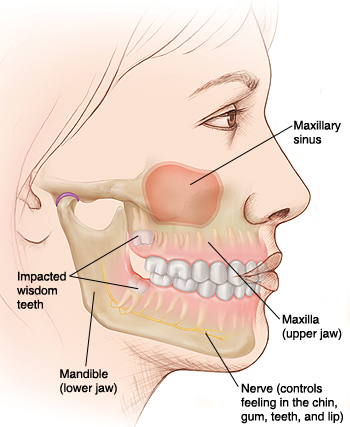 Side view of woman's face with teeth in jawbones visible. Mandible is lower jaw, maxilla is upper jaw. Maxillary sinus is in upper jaw. Nerve in mandible controls feeling in chin, gum, teeth, lip. Wisdom teeth in upper and lower jaws are impacted.