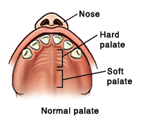 Top view of normal palate showing nose on outside, hard palate behind front teeth, and soft palate.