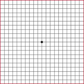 Amsler grid of black lines forming small squares and black dot in the center.