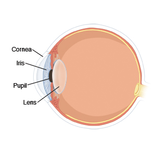 particle removed from eye with rust ring corneal foreign body
