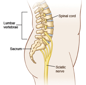 Outline of a side view of the body showing the position of the spinal cord, lumbar vertebrae, sacrum, and sciatic nerve.