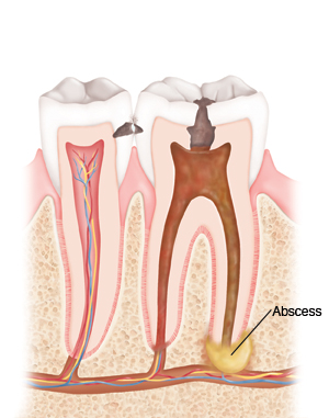 Dental Abscess with Facial Cellulitis
