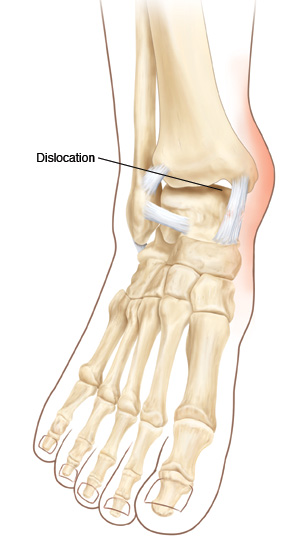 Front view of ankle and foot showing ankle dislocation.