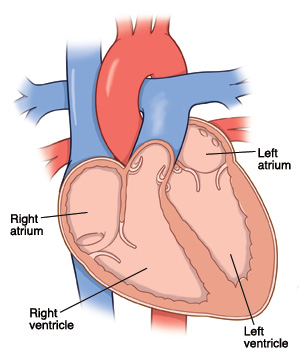 Left Or Right Side Congestive Heart Failure