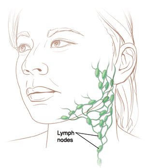 Local Lymph Node Swelling in the Neck, No Antibiotic Treatment