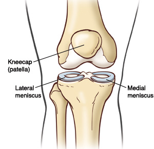 Knee pain with possible torn meniscus ccuart Images
