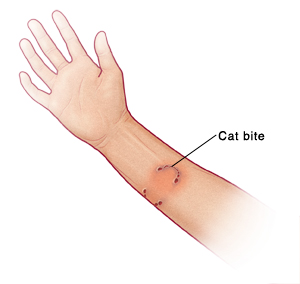 Human arm showing puncture wounds and red skin from a cat bite. Labels include: Cat bite