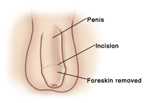 Penis ridge not visible after circumcision