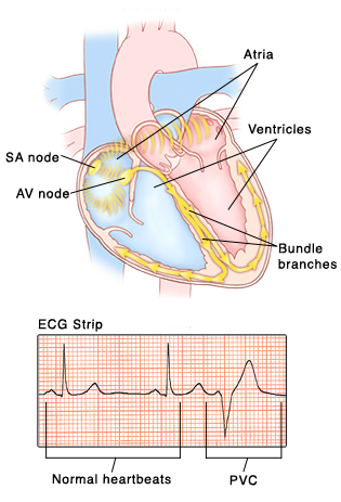 Front view of heart showing atria on top and ventricles on bottom. SA node and AV node are in right atrium. Bundle branch nerves are in wall between ventricles and curve into ventricle walls. Signals from AV node travel to AV node and into bundle branches. Inset of ECG strip with pattern of normal heartbeat compared with irregular pattern of PVC.