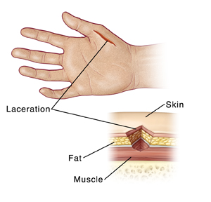 Hand Laceration with Possible Nerve Injury: Sutures or Skin Glue