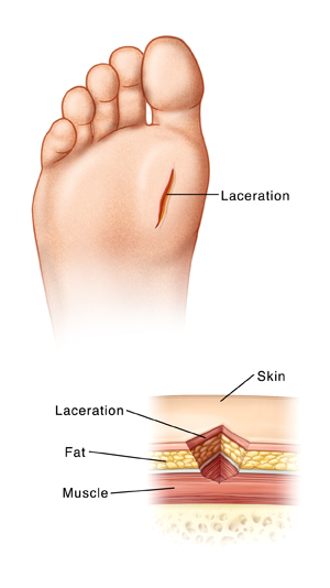 Foot Laceration All Closures