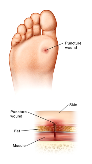 Puncture Wound: Foot