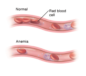 Normal blood vessel with red blood cells and other blood components, compared to a blood vessel with low red blood cells due to anemia.