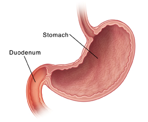 What are the symptoms of duodenitis