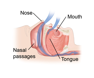 Air moves freely through the nose, mouth and throat.