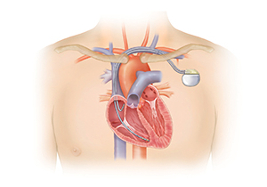 Outline of chest showing cross section of heart with pacemaker in place. Generator is under collarbone with 2 leads entering vein and going into heart. Right atrial lead ends in right atrium and right ventricular lead ends in bottom of right ventricle.