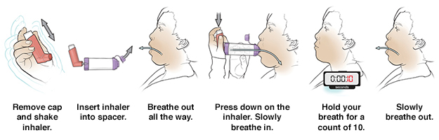 Six steps in using metered-dose inhaler with a spacer.