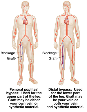 Peripheral Artery Bypass Surgery