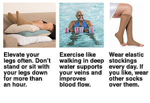 Three ways to reduce risk of deep vein thrombosis: elevate legs, exercise in water, wear compression stockings.