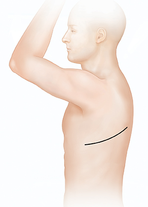 Side view of male torso showing possible incision site for thoracotomy.