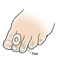 Foot with pad on seond toe.