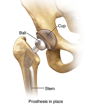 Front view of hip joint with total prosthesis in place.