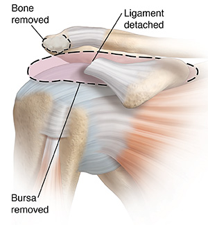 Front view of shoulder joint showing inflamed bursa and bone spur on acromion being removed.