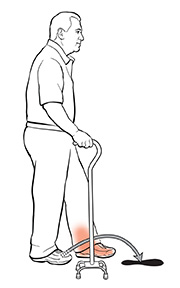 Side view of man using a quad cane. The arrow shows where he should put his foot.
