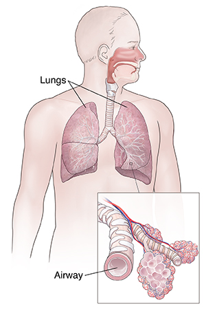 Viral or Bacterial Bronchitis with Wheezing (Adult)