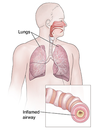 Front view of man showing respiratory system. Inset shows inflamed airway.