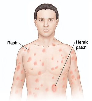 Pityriasis rosea causes, rash, herald patch, stages, treatment.