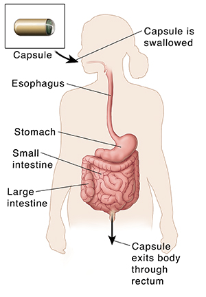 Outline of body showing gastrointestinal tract and path of capsule for capsule endoscopy.
