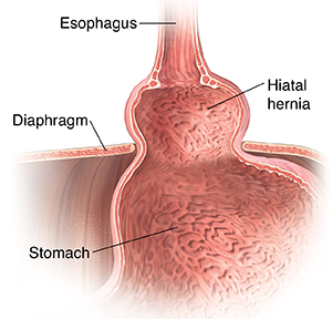 Closeup cross section of top part of stomach, lower esophagus, and diaphragm showing hiatal hernia.
