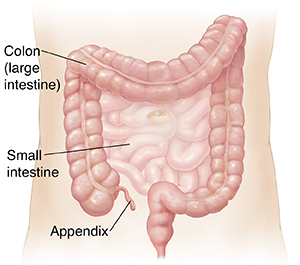 what is appendicitis?, Human Body