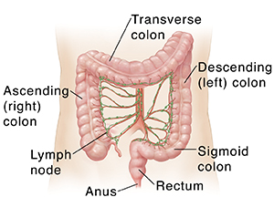 What Is Colon And Rectal Cancer Colorectal Cancer