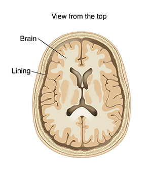 3-89205	Meningitis	Illustration	Medical illustration				Top view cross section of brain showing lining.