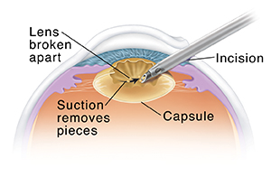 Cross section of eye showing instrument removing lens