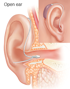 Cross section of ear showing outer, inner, and middle ear structures with receiver-in-ear hearing aid in place with inset of external view.