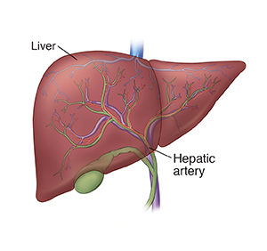 chemoembolization for liver cancer the procedure