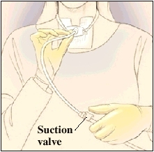 Closeup of woman's neck and chest showing suction tube inserted in trach tube. One hand is holding suction tube in place. Other hand is using suction valve.
