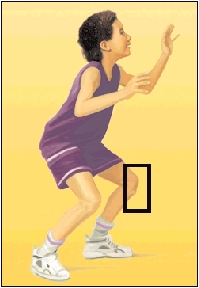 In some children, physical activities can put stress on the knee and cause Osgood-Schlatter disease.