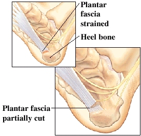 fascia painful is surgeons today with larger procedure popular scars can release and lead many open been significantly plantar to still planters planter address has the it more of surgery dissection fasciitis podiatry how although complications requires