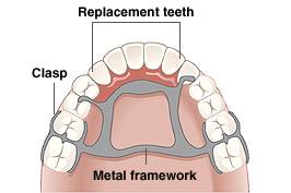 Roof of mouth and teeth showing partial denture. Clasp is around teeth. Metal framework is on roof of mouth. Framework holds replacement teeth.