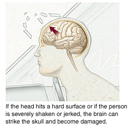 Outline of head hitting windshield showing brain inside moving forward in skull. If head hits hard surface or if person is severely shaken or jerked, brain can strike skull and become damaged.